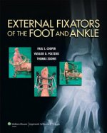 External Fixators Of The Foot & Ankle