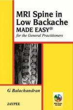 MRI Spine in Low Backache Made Easy