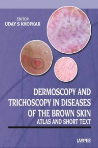 Dermoscopy and Trichoscopy in Diseases of the Brown Skin