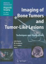 Imaging of Bone Tumors