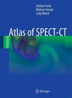 Atlas of SPECT-CT