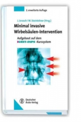 Minimal invasive Wirbelsäulen-Intervention