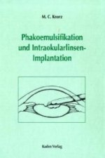 Phakoemulsifikation und Intraokularlinsenimplantation, m. CD-ROM