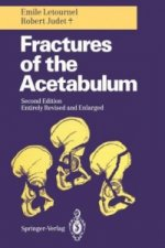 Fractures of the Acetabulum