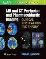 MR & CT Perfusion Imaging: Clinical Applications and Theoret