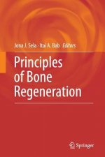 Principles of Bone Regeneration