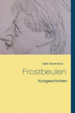 Frostbeulen