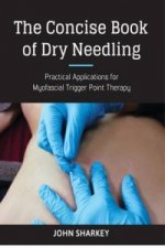Concise Book of Dry Needling