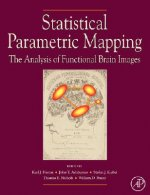 Statistical Parametric Mapping: The Analysis of Functional B