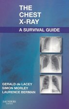 Chest X-Ray, a Survival Guide