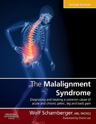 Malalignment Syndrome