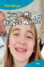 How Do My Braces Work