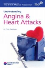 Understanding Angina and Heart Attacks