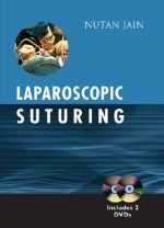 Laparoscopic Suturing
