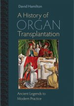 History of Organ Transplantation