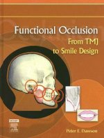 Functional Occlusion