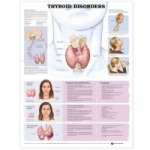 Thyroid Disorders Anatomical Chart
