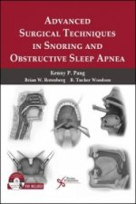 Advanced Surgical Techniques in Snoring and Obstructive Slee