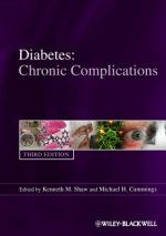 Diabetes Chronic Complications
