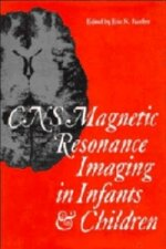 CNS Magnetic Resonance Imaging in Infants and Children