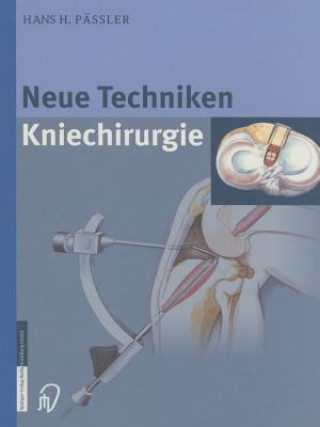 Neue Techniken Kniechirurgie