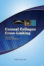 Corneal Collagen Cross Linking