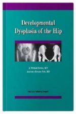 Developmental Dysplasia of the Hip