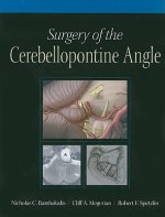 Surgery of the Cerebellopontine Angle
