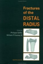 Fractures of the Distal Radius