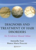 Diagnosis and Treatment of Hair Disorders