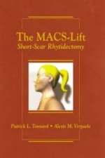 Macs-Lift Short Scar Rhytidectomy