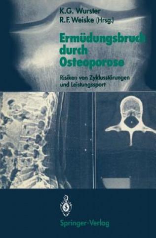 Ermudungsbruch Durch Osteoporose