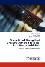 Shear Bond Strength of Brackets Adhered to laser-Etch Versus Acid-Etch
