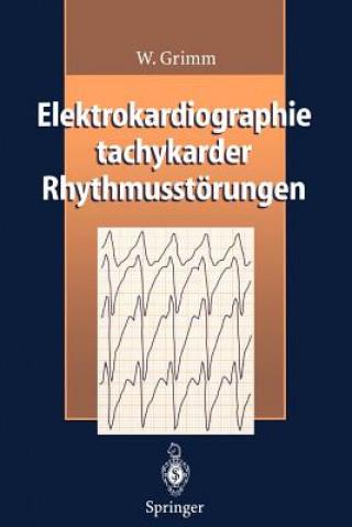 Elektrokardiographie Tachykarder Rhythmusstorungen