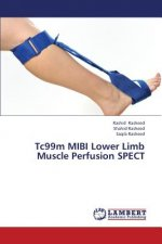 Tc99m MIBI Lower Limb Muscle Perfusion SPECT