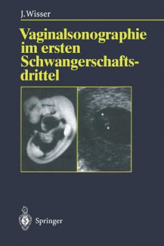 Vaginalsonographie im Ersten Schwangerschaftsdrittel