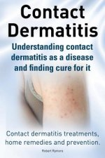 Contact Dermatitis. Contact Dermatitis Treatments, Home Remedies and Prevention. Understanding Contact Dermatitis as a Disease and Finding Cure for It