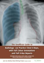 Unofficial Guide to Radiology: 100 Practice Chest X Rays with Full Colour Annotations and Full X Ray Reports
