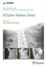 AOSpine Master Series - Adult Spinal Deformities