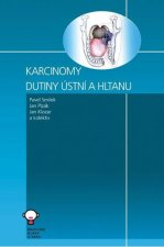 Karcinomy dutiny ústní a hltanu