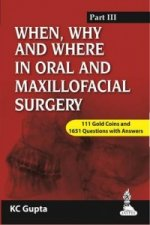 When, Why and Where in Oral and Maxillofacial Surgery: Prep Manual for Undergraduates and Postgraduates Part-III