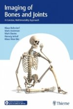 Imaging of Bones and Joints