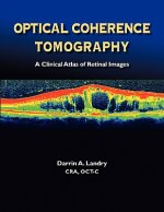 Optical Coherence Tomography a Clinical Atlas of Retinal Images