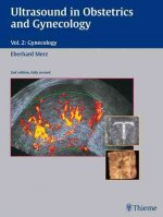 Ultrasound in Gynecology and Obstetrics, Vol. 2: Gynecology