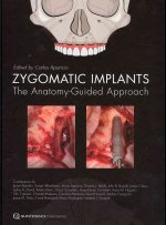 Zygomatic Implants: The Anatomy-Guided Approach