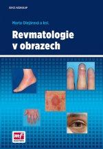 Revmatologie v obrazech