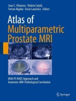 Atlas of Multiparametric Prostate MRI