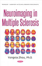 Neuroimaging in Multiple Sclerosis