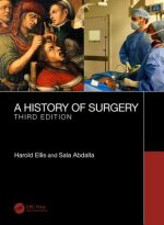 History of Surgery
