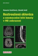Roztroušená skleróza a onemocnění bílé hmoty v MR zobrazení